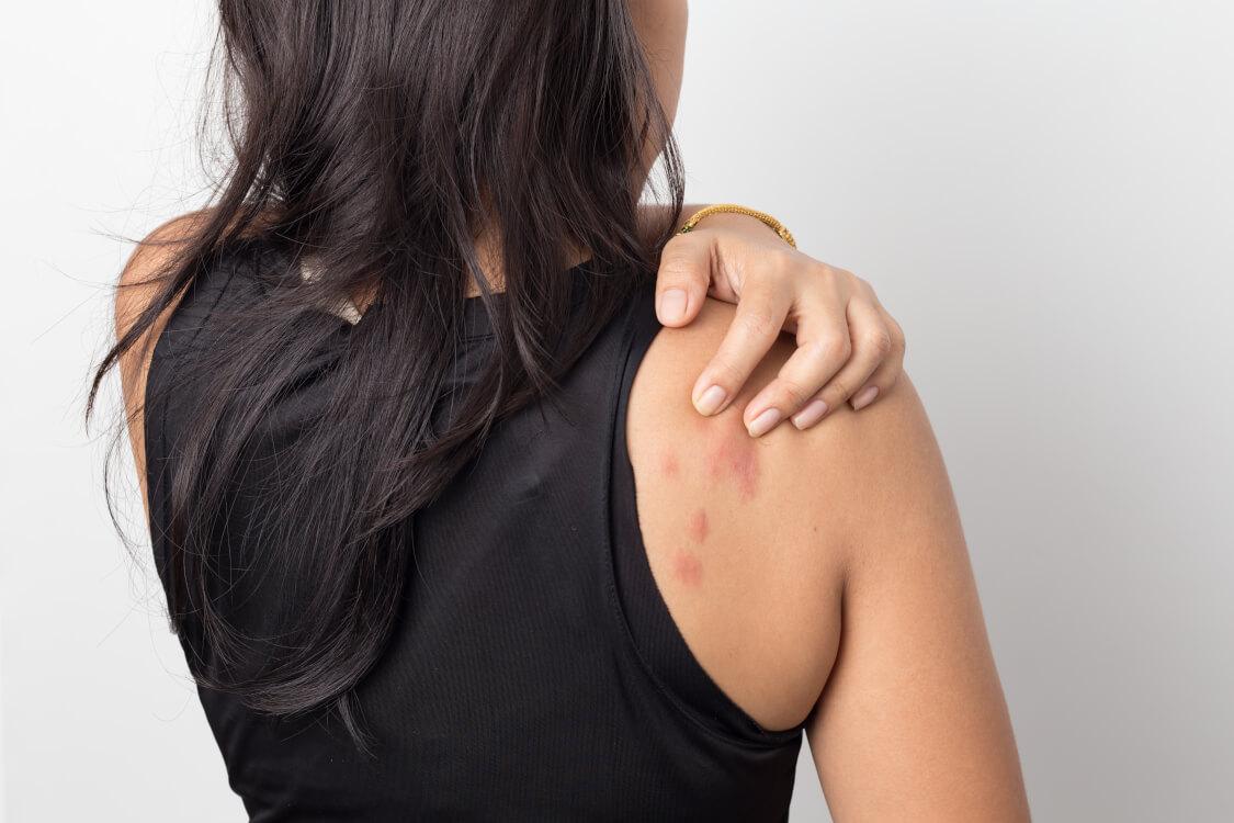 蕁麻疹の症状